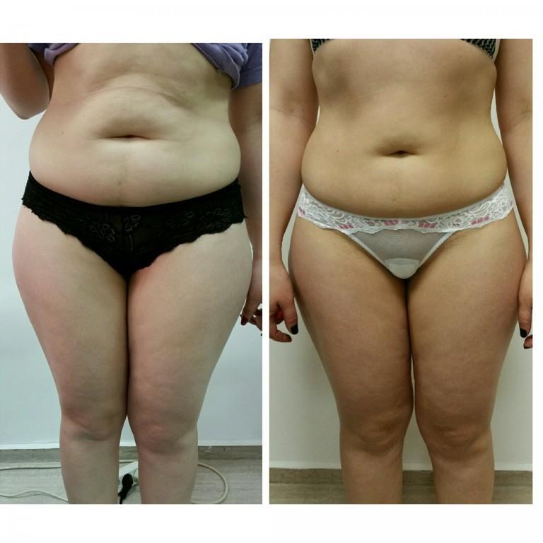 Как Похудеть Без Физических. Как быстро похудеть без диет и тренировок