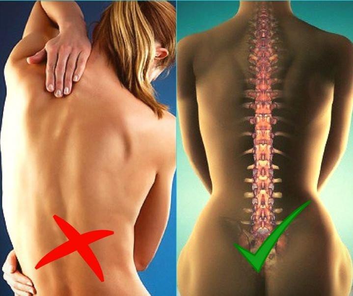 Похудение При Болезни Позвоночника. Влияние лишнего веса на позвоночник и суставы